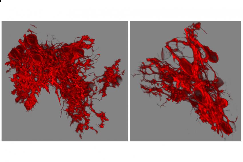 Beide Zellen charakterisiert ein dreidimensionales Geflecht. Allerdings ist das Geflecht der rechten Nervenzelle deutlich weniger dicht und umfangreich. Diese Zelle hatte eine DYRK1A-Überaktivität